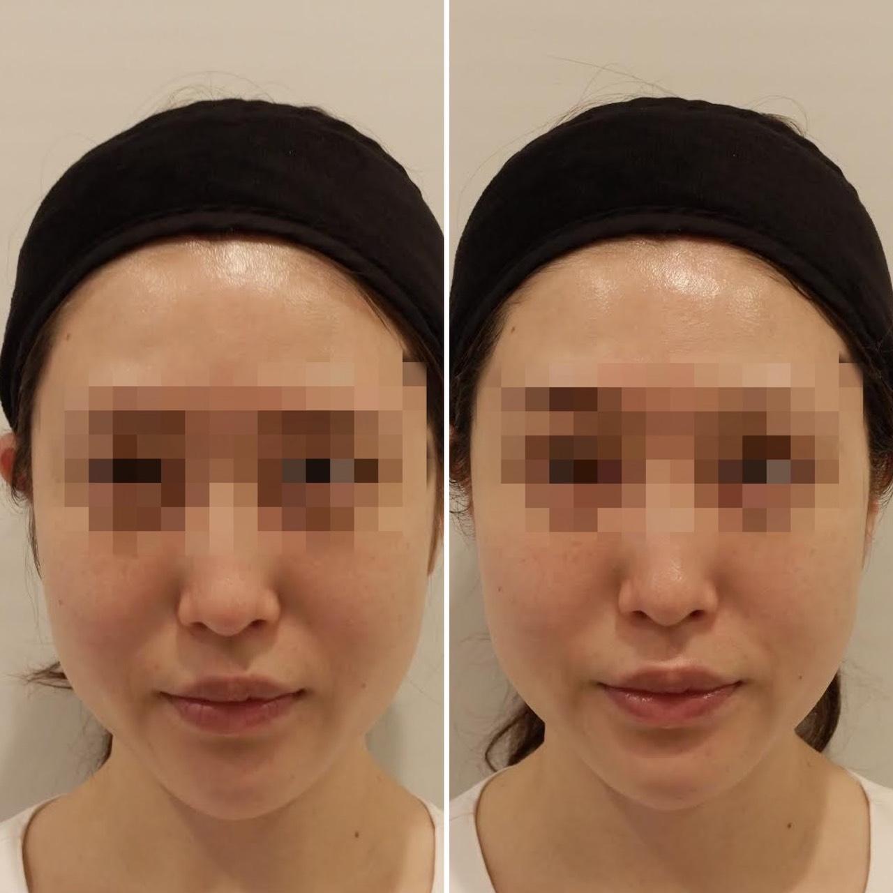 左が施術前、右が施術後。ほうれい線が浅くなり、顎のラインも気持ちシャープに。