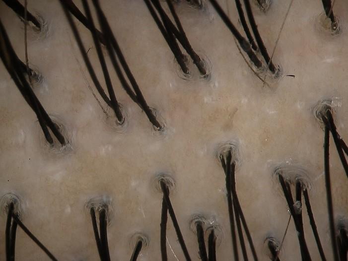 頭皮がカルボニル化(酸化の一種)した状態。黄色く、皮脂のつまりがあり、毛穴にたるみがあります。