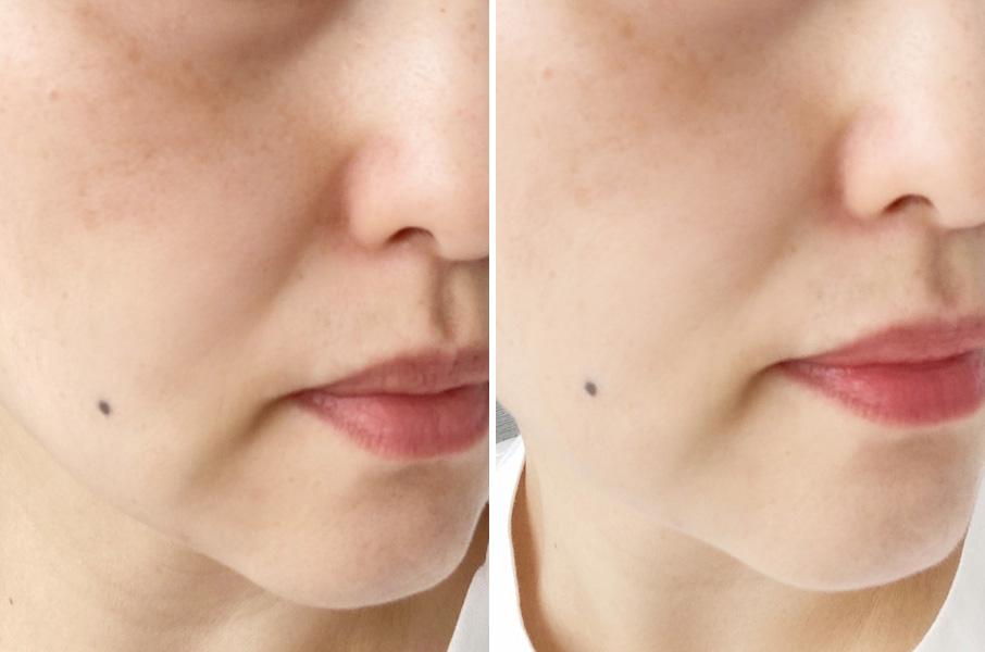 左が使用前、右が使用を続けて10日後。すっぴんだとはっきりわかるほど、毛穴の黒ずみが少なくなりました。このまま使い続けて毛穴レスを目指したい!